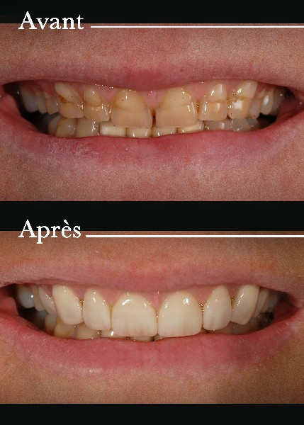 dentaire paris prothesiste 📞 appelez votre chirrugien dentiste garde pour votre urgence dentaire, prix et rdv dentiste par appel - geoallo  boulevard de paris 13003 marseille: afficher le.